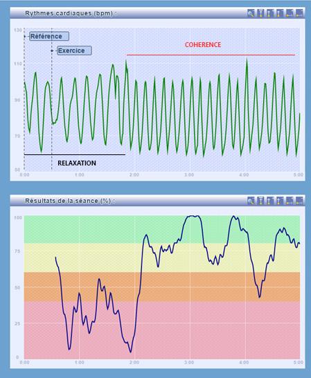 Le relevé ci-dessus montre d'abord l'activité cardiaque d'un sujet au niveau sophroliminal pendant une SBV (2 premières minutes), suivi d'une modification instantanée de son activité cardiaque « en cohérence » lors du passage en respiration 5/5 à 6 cycles par minute (à partir de 2 minutes). Le passage en cohérence cardiaque est clairement identifié sur le diagramme du bas, avec une courbe qui grimpe dans les zones de haute cohérence (zones jaune et verte).